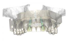 نرم افزار simpalnt dental