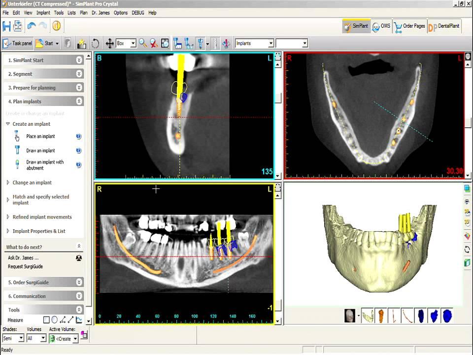 کرک نرم افزار dental simplant